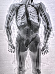 One scanned image shows an inmate trying to smuggle a screwdriver into the jail by tucking it inside his body.