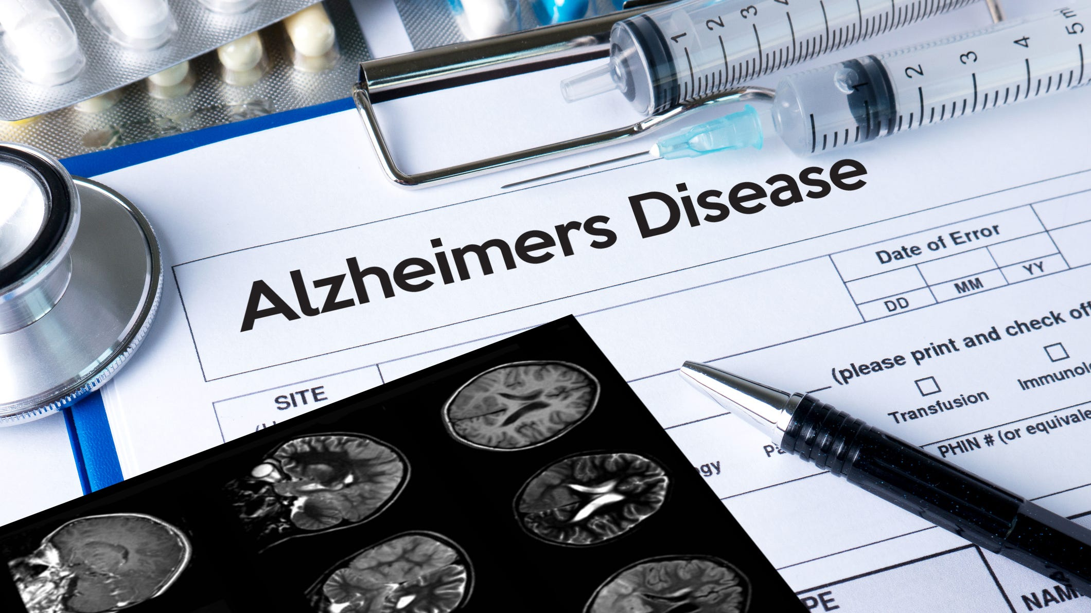 Image result for Is this Alzheimer's drug a breakthrough for millions? Company unveils mixed results