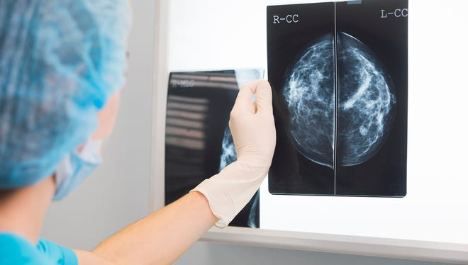 Breast reconstruction can be performed at the time of the mastectomy or lumpectomy.