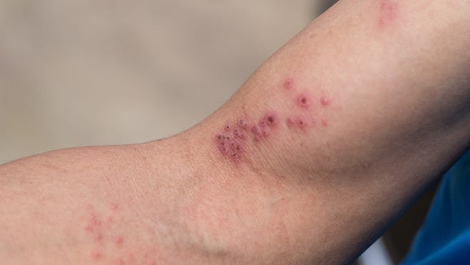 Raised red bumps and blisters caused by shingles on skin