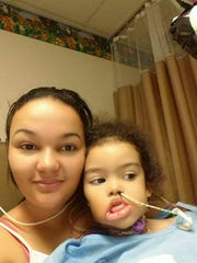 Melyssa Braga after the operation performed through a collaboration with LSU Health Shreveport and Willis-Knighton.