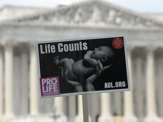 635756819840742274-abortion-column