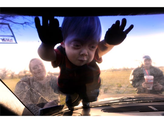 After little league practice March 25, 2010, Brenden Baker, 7, stretches out on his windshield of his parent's car. Brenden has a rare form of dwarfism and wasn't expected to grow taller than 3 feet.