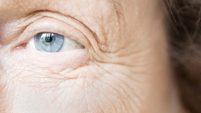 Cedars-Sinai Medical Center researchers say an eye scan can detect Alzheimer's signs years before symptoms appear.