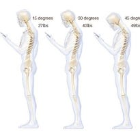 Illustration of pressure on a person's spine from hunching over to look at a smart phone.