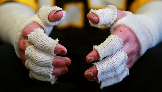 This file photo shows the hand of a burn victim whose hands were bandaged to prevent infection.