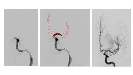 Image 1: Left internal carotid artery blockage from a clot.  Image 2: Left internal carotid artery blockage from a clot with illustration of the blood vessels that are not receiving blood flow.  Image 3: After a thrombectomy, once the clot has been retrieved and blood flow is restored.