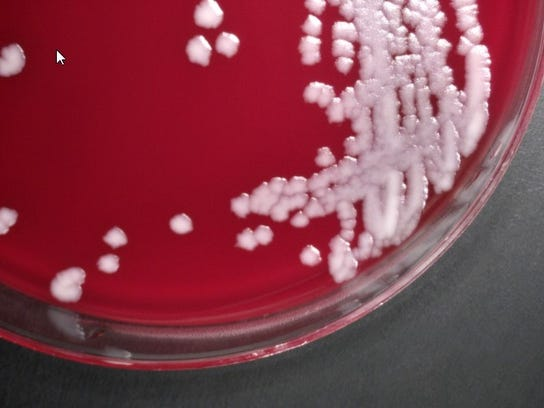 Colonies of anthrax bacteria