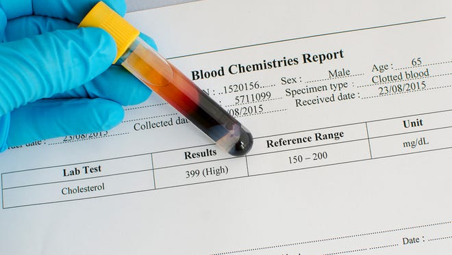 Blood sample with high cholesterol result