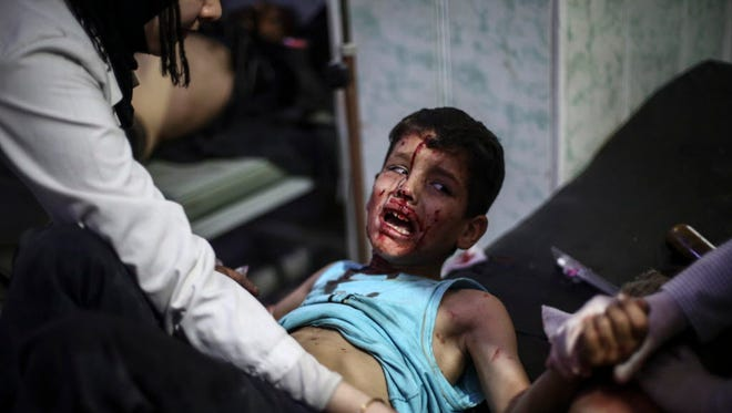 A boy receives first aid in a field hospital after an airstrike in the rebel-held area of Douma, Syria, on Oct. 30.