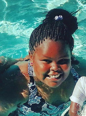 This undated photo shows Jahi McMath. The girl has been declared brain-dead at a California hospital.