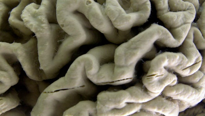 A close-up of a human brain affected by Alzheimer's disease on display at the Museum of Neuroanatomy at the University at Buffalo in New York.