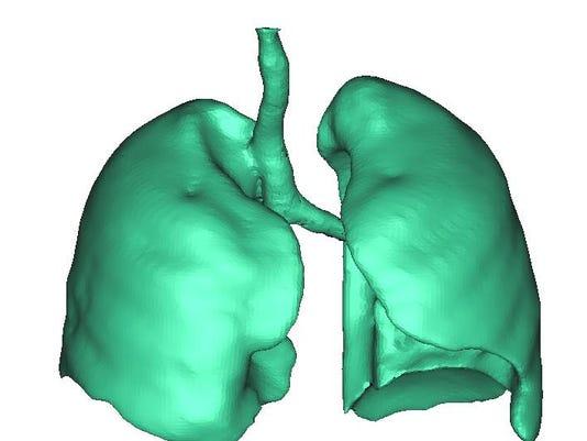 lung2.jpg