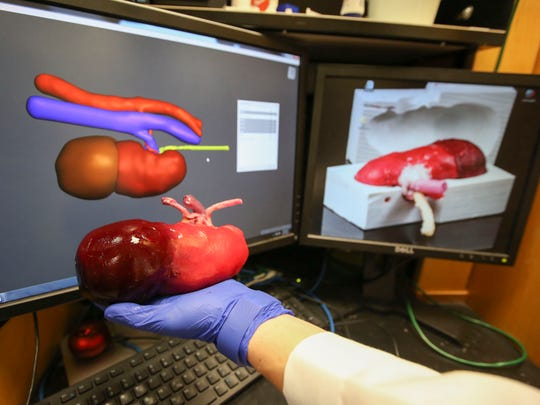 URMC surgeon makes organs for realistic practice