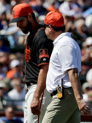 Giants pitcher Madison Bumgarner exits Friday's spring training game against Kansas City after getting hit by a line drive on his pitching hand.