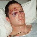 "A photo claiming to show the police officer involved in the Ferguson shooting with a serious injury to his right eye was widely shared on the internet along with the question: ""Why Aren't the Media Releasing Photos Officer Darren Wilson's Injuries?"" There's a simple answer. The photo isn't of Darren Wilson. It's really a photo of motocross rider Jim McNeil that was first posted in 2006."
