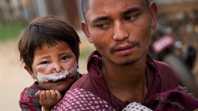 Nepalese child Subha Laxini, 3, who was injured in Tuesday's earthquake is carried by father Lak Bahadur on their way to a camp for the displaced in Chautara, Nepal, Wednesday, May 13, 2015.