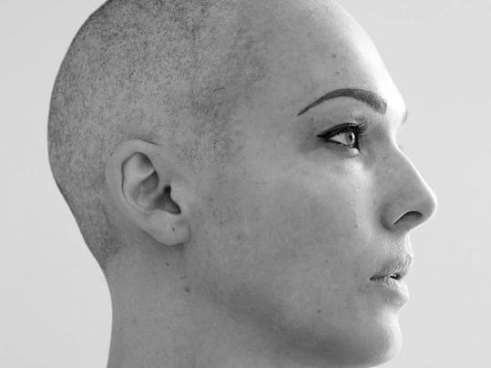 erin cummings bald profile