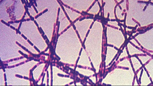 Anthrax is a serious, potentially deadly bacterial illness that is treated with antibiotics.
