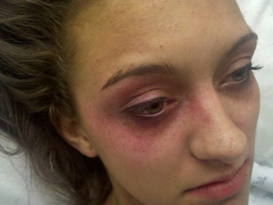Photos of Megan Taylor taken at a Springfield hospital show petechiae— red, brown or purple spots caused by broken capillary blood vessels— which can indicate brain trauma or the lack of oxygen.