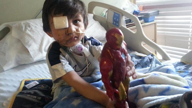 Kevin Vicente was attacked by Mickey, a pit bull, last month. The boy has to undergo facial surgeries.