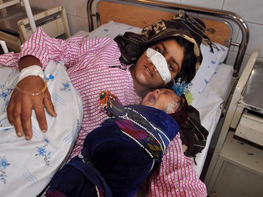 AFGHANISTAN-WOMEN-RIGHTS-ATTACK