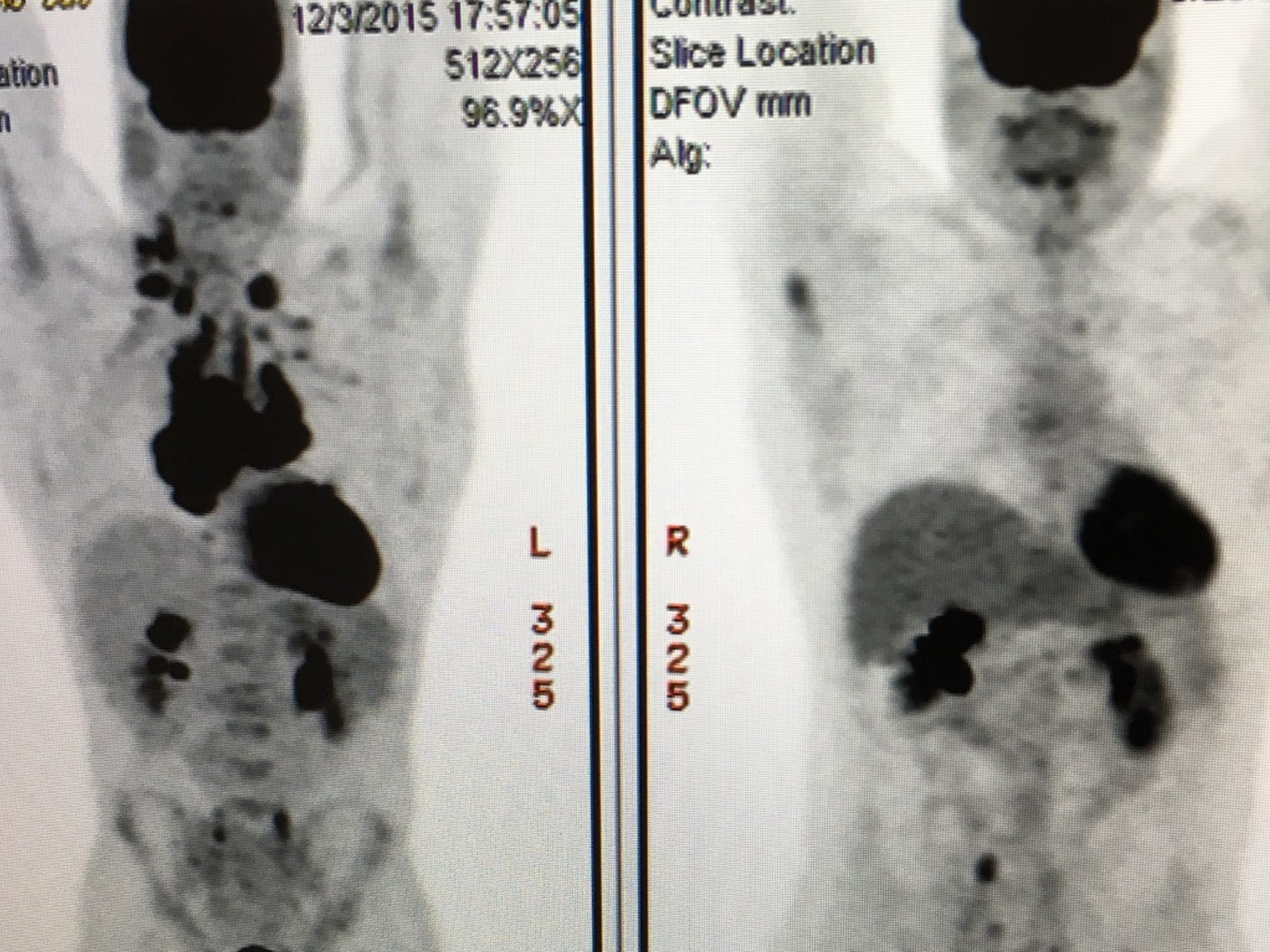 James Conner displays his Dec. 3 pre-chemotherapy scan