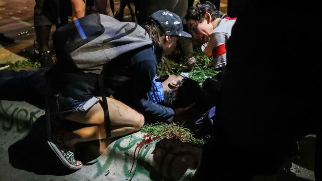A man left unconscious and bleeding from a head injury after being hit by a rubber bullet is treated by a first aid volunteer during a protest at police headquarters May 31.