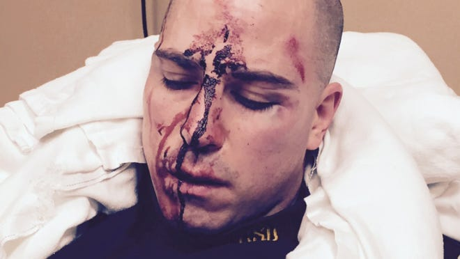 The Eaton County Prosecutor's Office released photos it says show Sgt. Jonathan Frost's injuries a day after announcing there would be no charges for the fatal shooting of Deven Guilford.