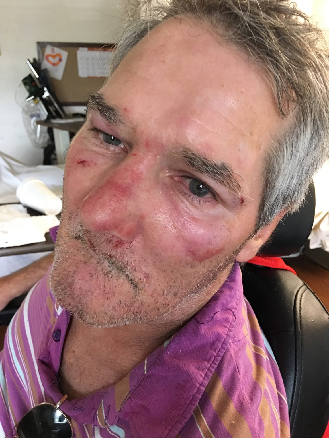 Christopher York after being assaulted by another resident of Heritage Park Rehabilitation and Healthcare in Fort Myers in 2016.