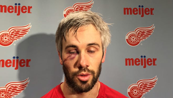 Detroit Red Wings forward Drew Miller shows his battle scar Wednesday, April 1, 2015.