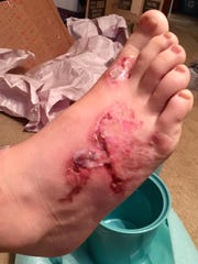 This is a photo of Michael Dumas' foot on July 25,