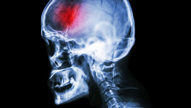 Seconds count when responding to a stroke since brain cells die rapidly without blood flow. That's why it's important to know the facts about what you can do to prevent a stroke and what to do if a stroke occurs.