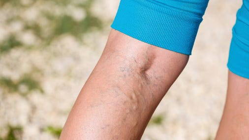 Good blood circulation is vital for a healthy body. There are times, however, when blood flow is impaired, resulting in a condition known as venous insufficiency.