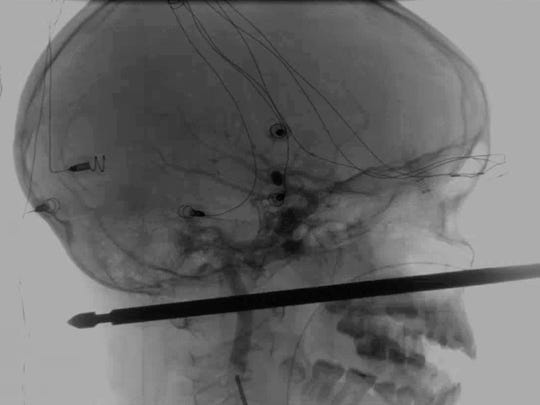 This X-ray provided by the Medical News Network shows