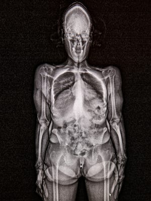 This is a scan of a prisoner at the Hamilton County Jail.  Any time a person is brought into the system, or any time a prisoner has contact with the public, including attorneys and visitors, and court visits, or work details, they are scanned.  Corrections officers are looking for contraband brought in body cavities.