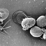 Public health issues alert about parasite often linked to food, water