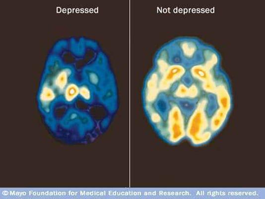 635875998070427290-Mayo-depression-PT-scans-copy.jpg