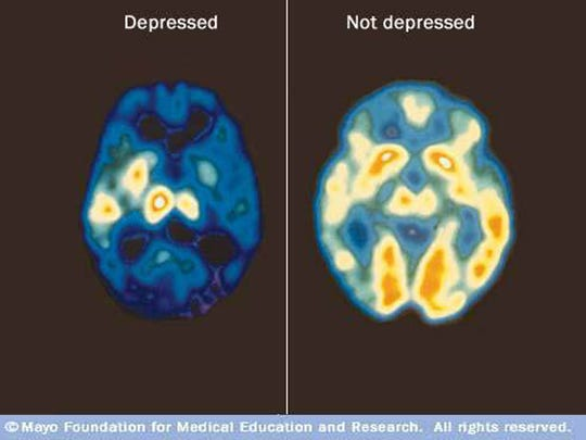 Presenters often use images like these PET scans, showing a brain with and without depression, to fight the stigma around mental illness. The image on the left, a brain with less activity due to depression, shows how mental illnesses are truly medical diseases.