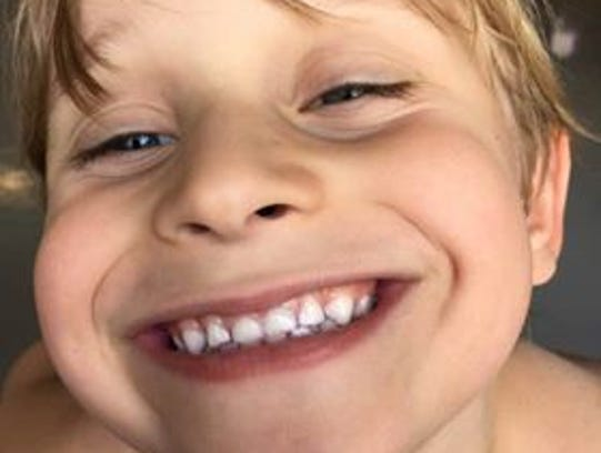 Cain Wick, 7, of Sheboygan, will benefit from an upcoming