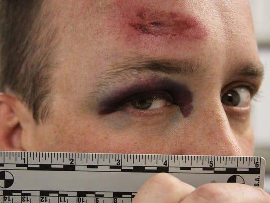 Neenah police officer Craig Hoffer suffered a head