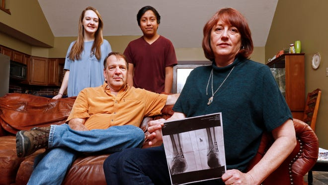 Leslie Kurtz, right, poses for a picture with her husband, Bart Bartram, daughter Rainey, and son Rio as she holds a print of an X-ray of her ankle, in Knoxville, Tenn.