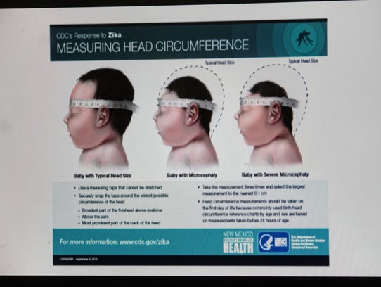 Microcephaly is a birth defect in which a baby's head