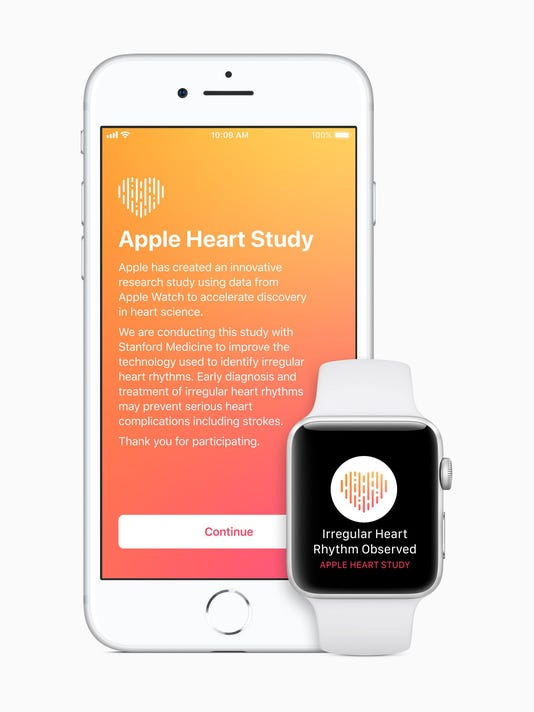 636476454802735843-iPhone-Watch-Heart-Study-intro-screen.jpg
