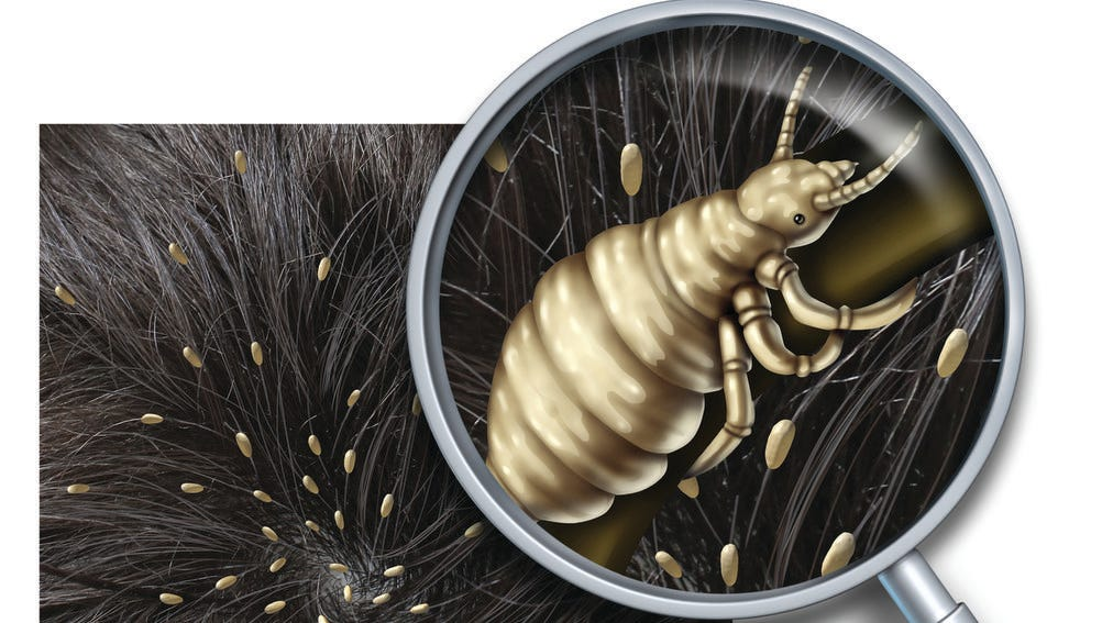 Tips To Treat Avoid Head Lice, How Long Can Lice Live On Clothes And Bedding