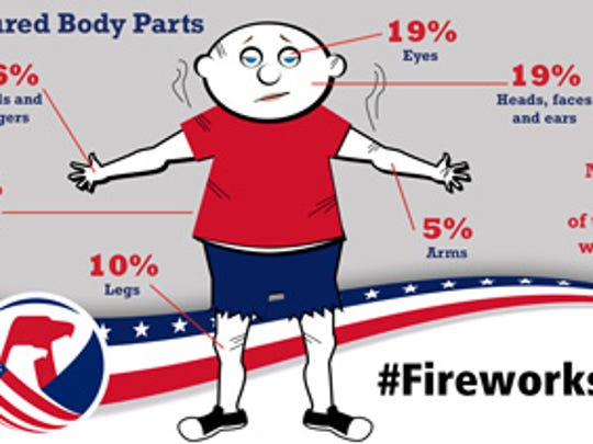 Most injured body parts by fireworks, according to