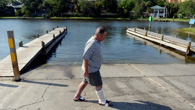 "Tom ""Corky"" Lewis, 58, walks past the boat ramp at Ballard Park in Melbourne where on Dec. 10, 2015 he was cast-netting for bait fish and became infected with Vibrio vulnificus, a naturally-occurring bacteria that can cause serious illness and death. ""The baitfish, little finger mullet, were right up against the bank,"" Lewis said. ""I called my fishing buddy, Mike (Perry), and said, 'Mike, we can get them and not even get wet.' "" Water dripping from the net ran down Lewis' leg, getting into a small cut on his right ankle."