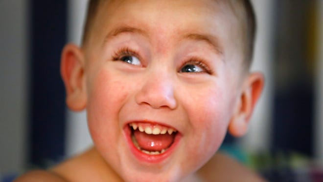 Three-year-old Henry Whitacre laughs while he gets dialysis at Riley Outpatient Center, Thursday, July 12, 2018. He will receive a new kidney for his birthday on July 18. A long-lost friend of his mom's responded to a plea for a living donor on Facebook and will be the donor.
