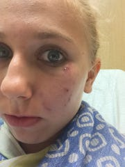 Injuries to Paula-Nelle Deusing's face in an attack on Fort Myers Beach on Tuesday.