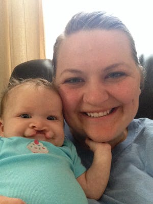 Kelsey Throne with daughter Juliana, who was born with a cleft, one of the most common birth defects. Kelsey Throne with daughter Juliana, who was born with a cleft, one of the most common birth defects.